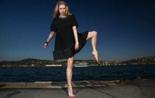 Varicose veins and fitness